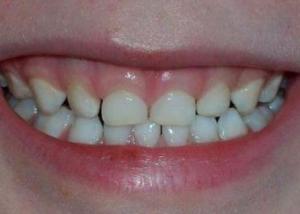 laat je tanden zien